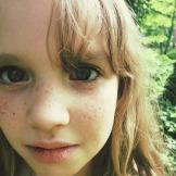 freckles2